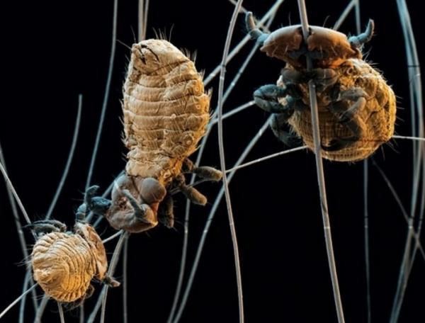 Власоеды под микроскопом