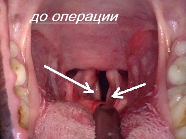 Связки до операции