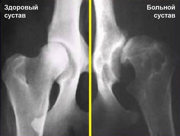 Сравнение здорового и больного суставов