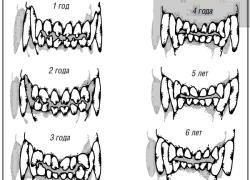 Собачьи зубы в разные возрасты