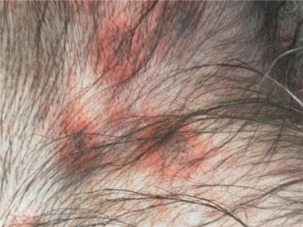 кожные паразиты у человека